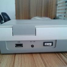 ordenador portátil con escáner de ultrasonido de alta calidad