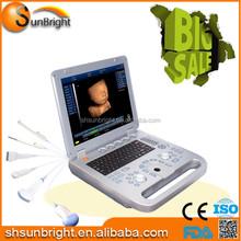 Hospital discount in 3D Color laptop battery Ultrasound/3D Ultrasound