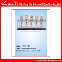 Hot Sale Student Practice Dental Pulp Disease Clinical Model