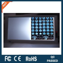 dual screen hospitals and clinics brightness adjustable led x-ray film viewer/viewing box