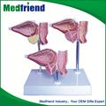mfm010 preço de fábrica da doença de próstata modelo médico humano peçasparacorpo
