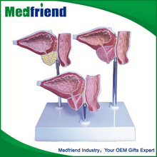 MFM010 Factory Price Prostate Disease Medical Model Human Body Parts