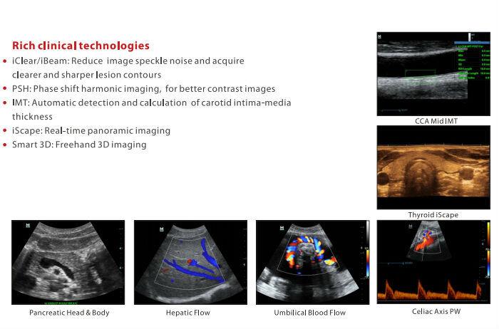 ultrasonogram machine