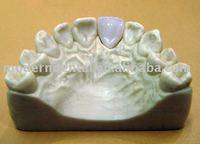 Dental PFM crown national supplies