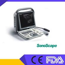 Sonoscape A6V B/W Portable Ultrasound Machine in Cow,Horse,Sheep,Dog,Cat