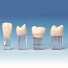 Endodontic Practice Model