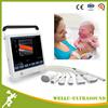 Good Price Touch Screen Abdominal Doppler Ultrasound Machines -WELLC10