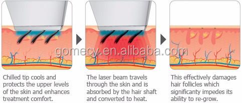 2020 new design hot diode laser alma lasers soprano ice platinum hair removal machine